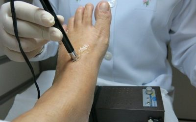 4 Things to Consider When Choosing a Podiatrist in Brisbane