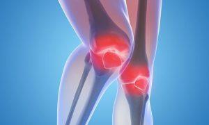 Arthritis Myths That You Shouldn't Believe